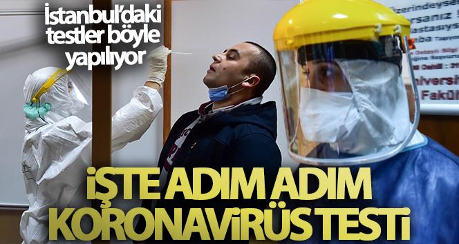 KORONAVİRÜS TESTİ NASIL YAPILIYOR?!..