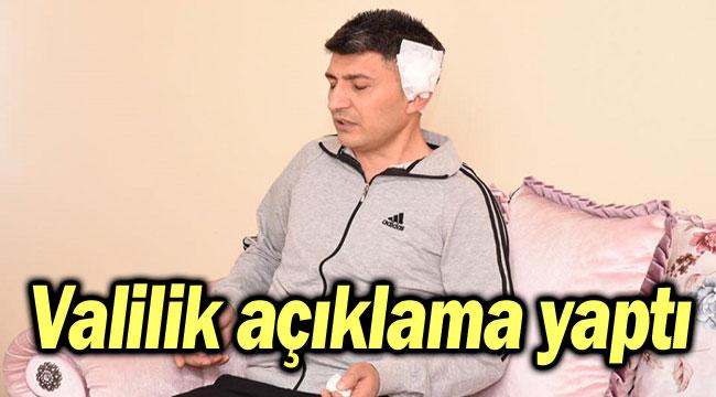 VALİLİK AÇIKLAMA YAPTI!..