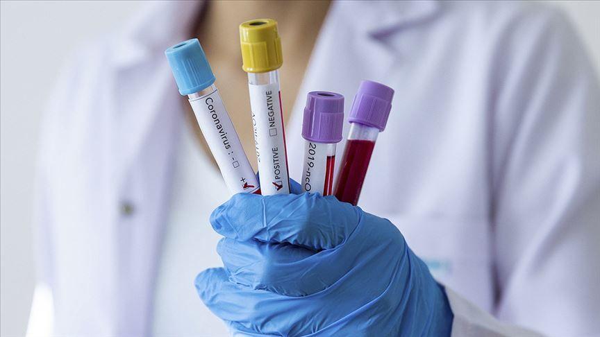 Koronavirüs tedavisinde umut veren gelişme