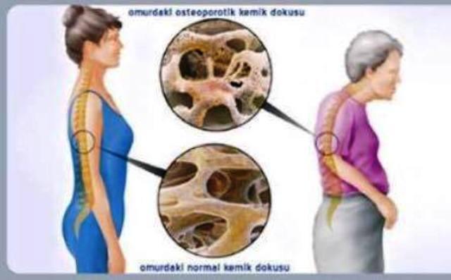 osteoporoz resim ile ilgili görsel sonucu