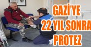 GAZİ'YE 22 YIL SONRA PROTEZ